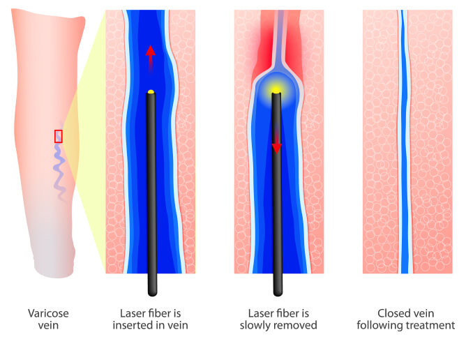 radiofrequency ablation tampa