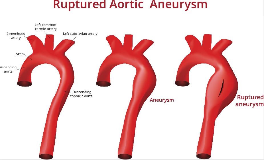Aortic Aneurysm tampa cardio