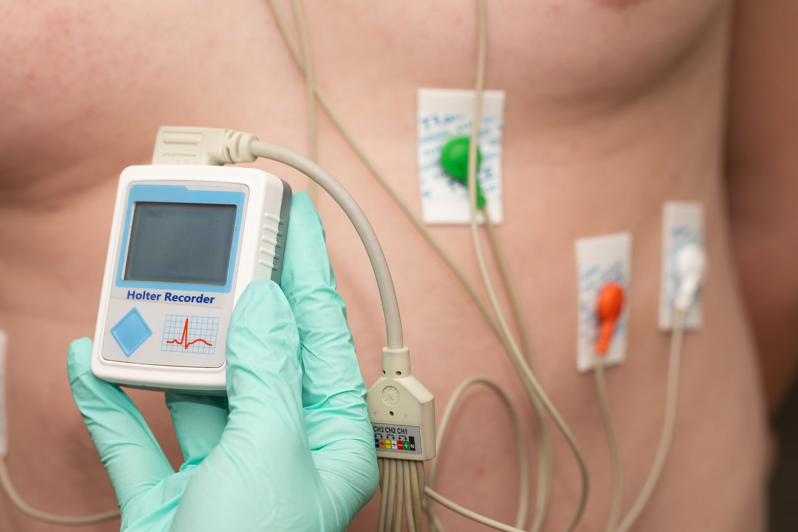 Holter Monitor Tampa Florida Tampa Cardio