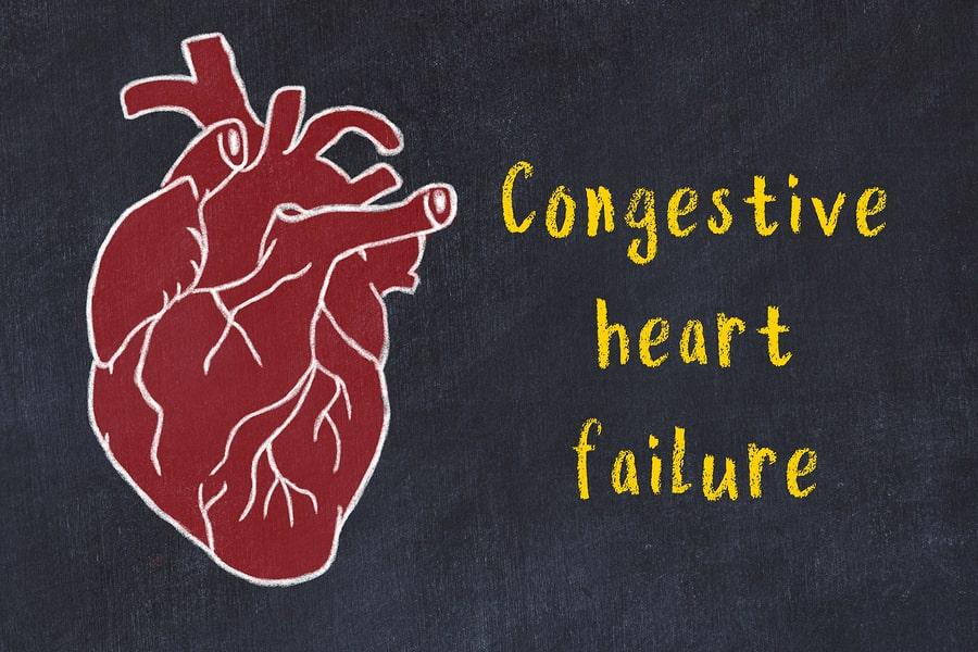 congestive heart failure tampa cardio