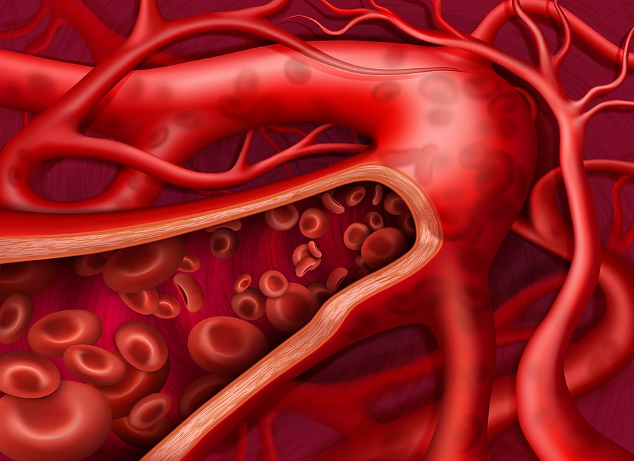 circulation tampa florida tampa cardio vein clinic