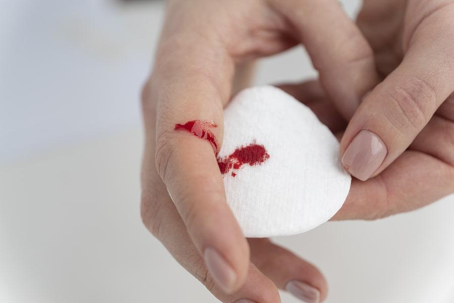 hemophilila blood disorder