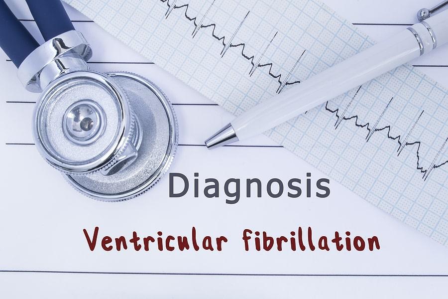 Ventricular Fibrillation tampa cardio